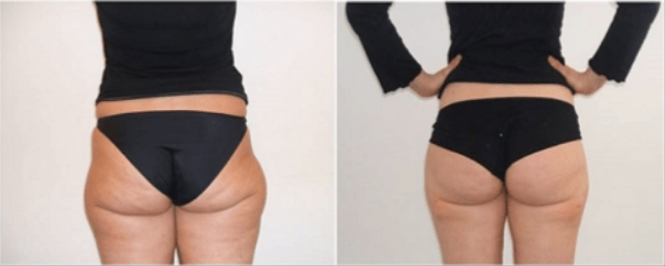 muffin tops treatment
