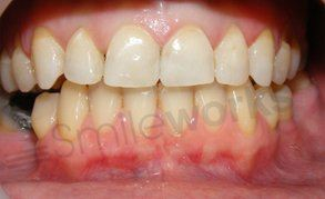 orthodontics liverpool case after