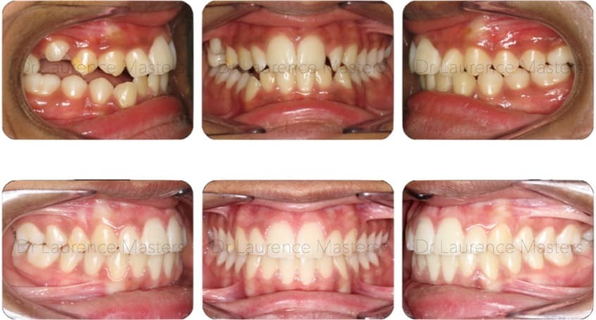 Specialist Orthodontist Before and After 1