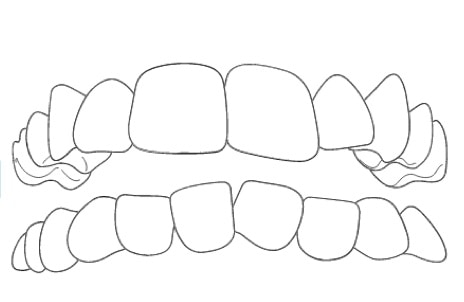 overcrowded teeth