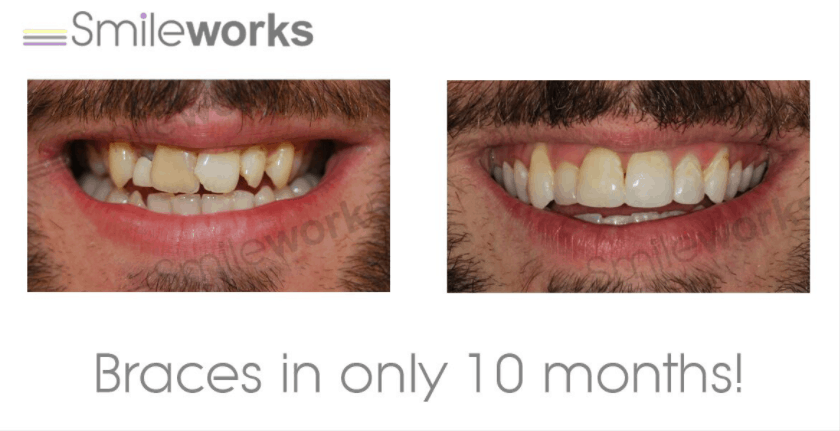 fastbraces before and after