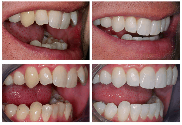 aligners before and after