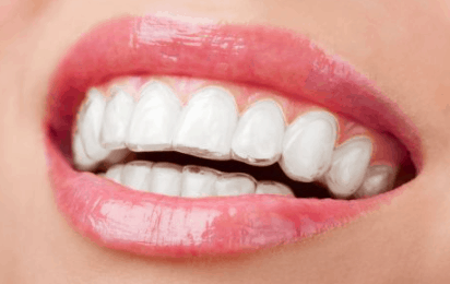 invisalign invisible retainers