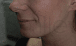 filler injections before 5