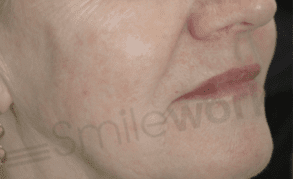 Non surgical face lift after