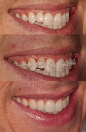 6MS before and after