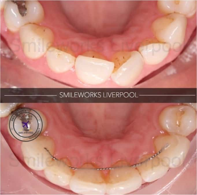 SIx month smiles moving the front six teeth into position