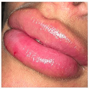 Lip fillers gone wrong