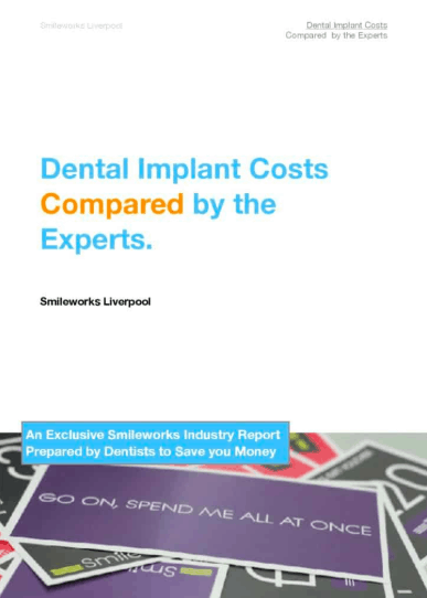 Dental Implant Costs in 2019 expert report